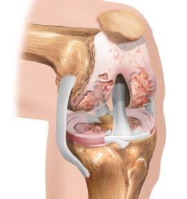 artrovex crema romania